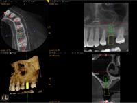 歯科用CT
