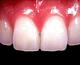 グラディアCR(歯冠までのもの)